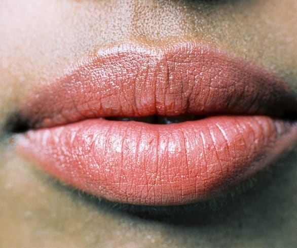 Say goodbye to cold sores with these DIY remedies - Viva